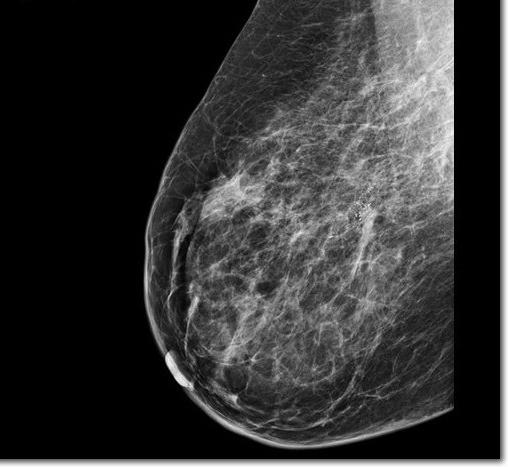 faire une mammographie à 40 ans